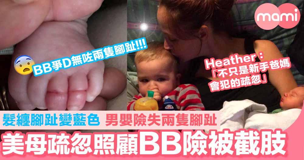 美母疏忽照顧10週大BB險被截肢! 髮纏腳趾變藍色 男嬰險失兩隻腳趾