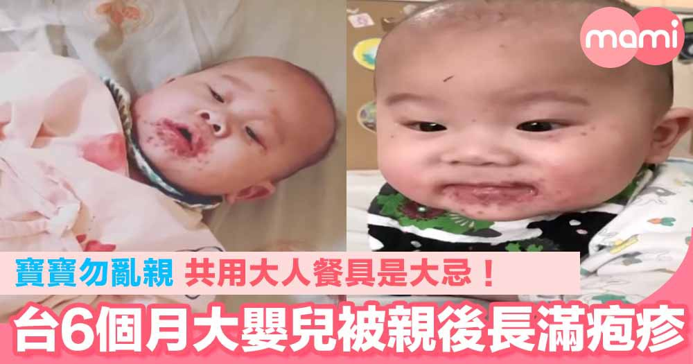台6個月大嬰兒被親後長滿疱疹! 寶寶勿亂親 共用大人餐具是大忌!