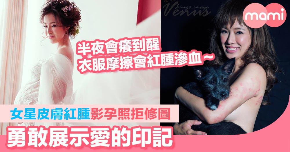 台灣女星最美孕照  皮膚紅腫影孕照拒修圖    勇敢展示愛的印記  懷孕會造成女人身體永遠破壞,但不可怕