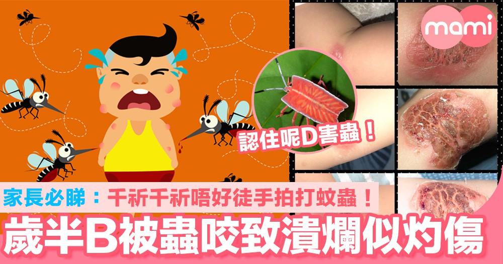 家長必睇:千祈千祈唔好亂拍蚊蟲! 歲半B被蟲咬致皮膚潰爛似灼傷!