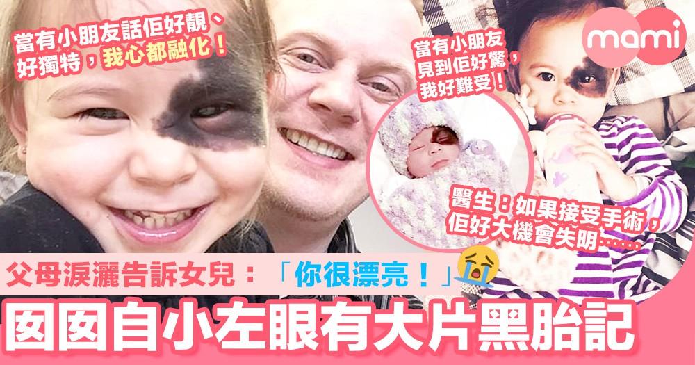 囡囡自小左眼長有大片黑胎記 父母淚灑告訴女兒:你很漂亮!